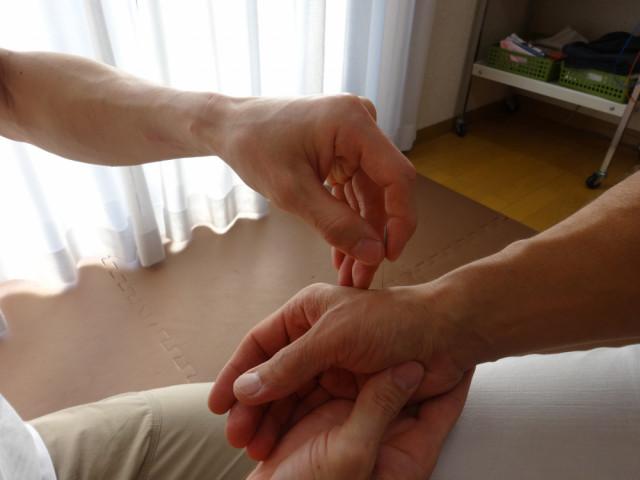 鍼灸施術で手に「はり」をしているところ