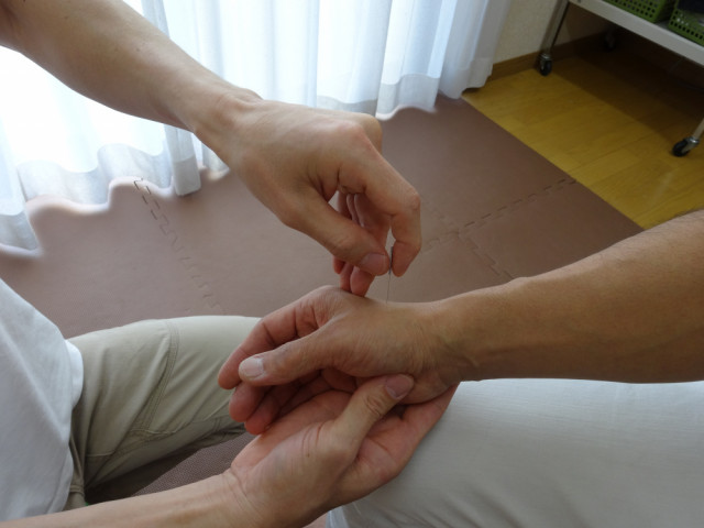 不妊症に対する鍼灸治療