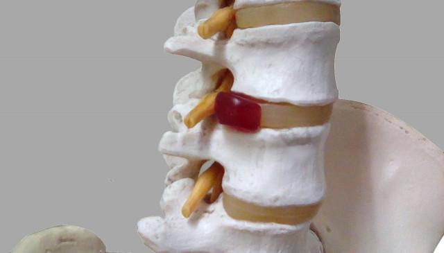 腰椎椎間板ヘルニアが神経を圧迫している状態