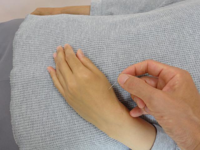 不妊症改善のために董氏楊氏奇穴で手にはりをしている所